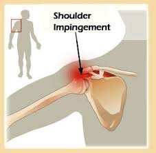 Shoulder strain syndrome-pasclinic.ir